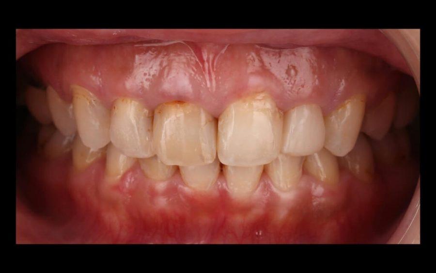 陶瓷貼片心得-牙齒黃術前門牙照-台中瓷牙貼片推薦-牙齒美白-朗日牙醫-劉得廷醫師