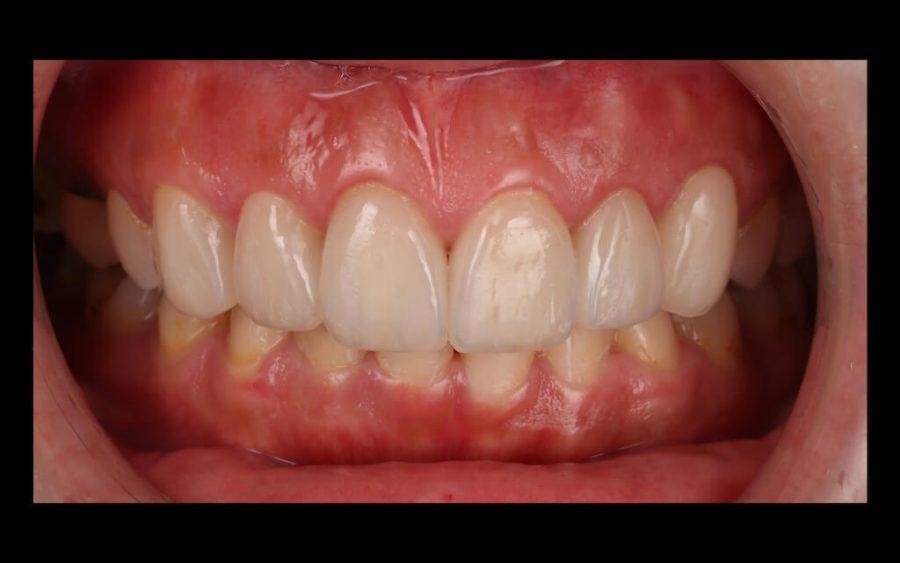 陶瓷貼片心得-牙齒黃術後門牙照-台中瓷牙貼片推薦-牙齒美白-朗日牙醫-劉得廷醫師