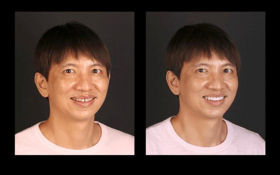 用陶瓷貼片修整恢復牙齒美觀-前後笑容比對圖-右側