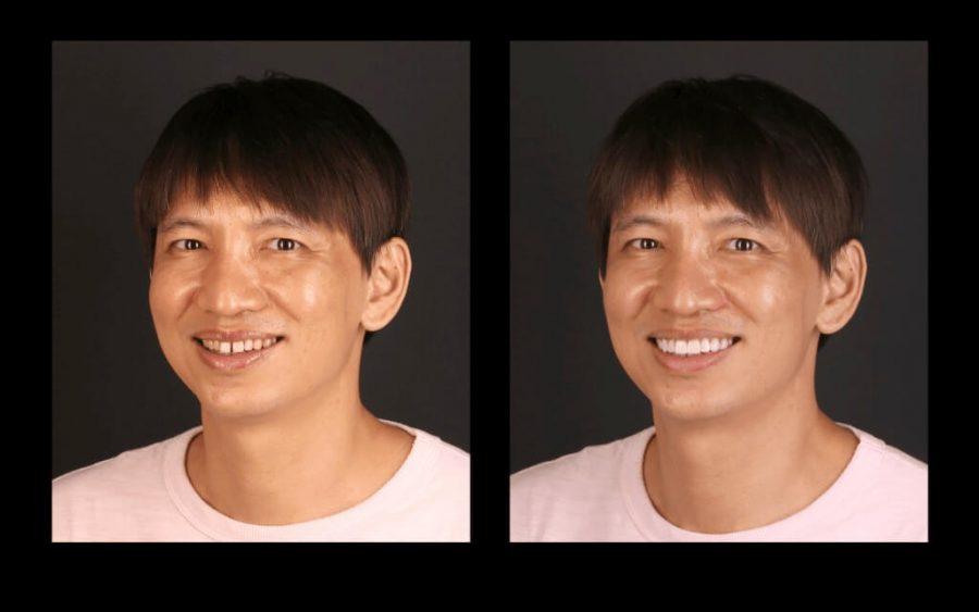 用陶瓷貼片修整恢復牙齒美觀-前後笑容比對圖-左側