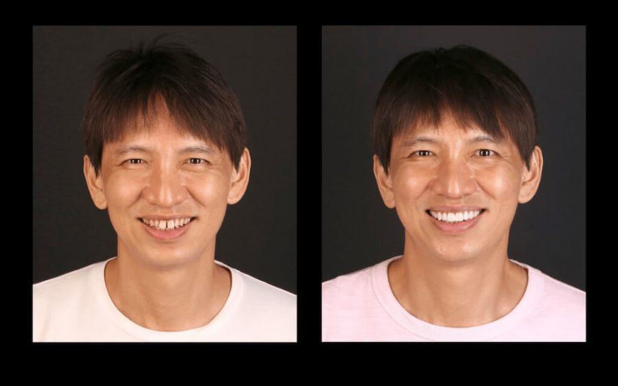 用陶瓷貼片修整恢復牙齒美觀-前後笑容比對圖-正面