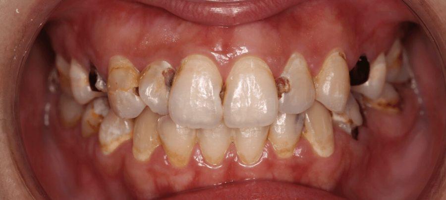 門牙蛀牙-牙齒黃-陶瓷貼片前-台中-劉得廷醫師