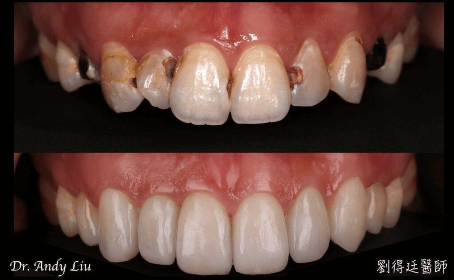 門牙蛀牙-牙齒黃-陶瓷貼片後-門牙全瓷冠-門牙貼片-一日美齒-台中-劉得廷醫師