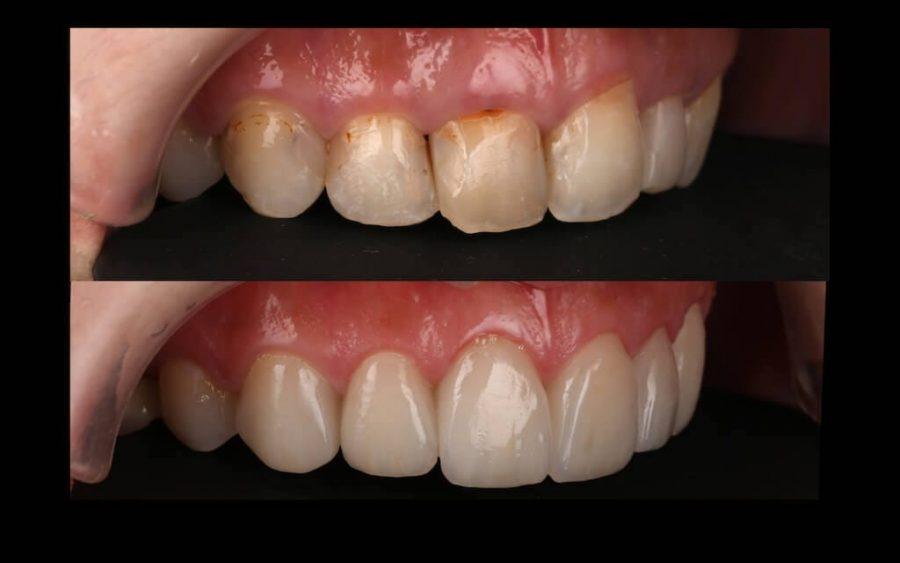 陶瓷貼片心得-牙齒黃上排門牙右側比較-台中瓷牙貼片推薦-牙齒美白-朗日牙醫-劉得廷醫師