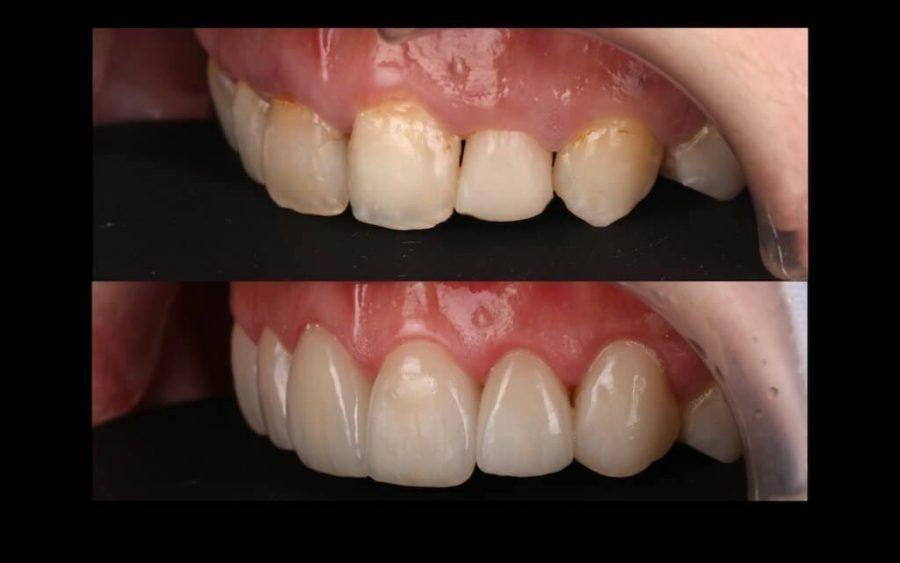 陶瓷貼片心得-牙齒黃上排門牙左側比較-台中瓷牙貼片推薦-牙齒美白-朗日牙醫-劉得廷醫師