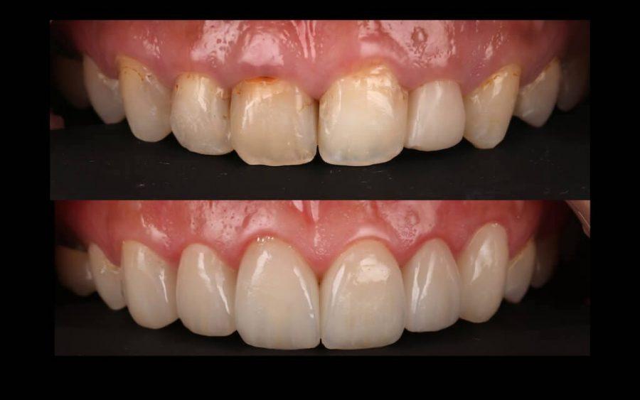 陶瓷貼片心得-牙齒黃上排門牙比較-台中瓷牙貼片推薦-牙齒美白-朗日牙醫-劉得廷醫師