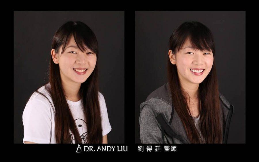 陶瓷貼片心得-牙齒黃-DSD數位微笑-牙齒美白前後笑容對比右側面-台中瓷牙貼片推薦-朗日牙醫-劉得廷醫師