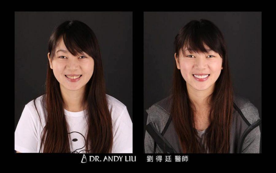 陶瓷貼片心得-牙齒黃-DSD數位微笑-牙齒美白前後笑容對比正面-台中瓷牙貼片推薦-朗日牙醫-劉得廷醫師