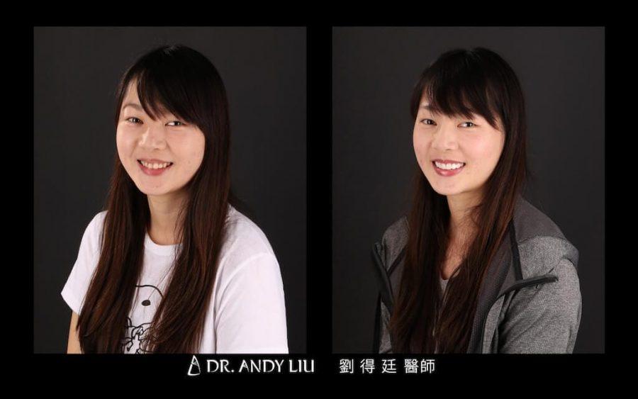 陶瓷貼片心得-牙齒黃-DSD數位微笑-牙齒美白前後笑容對比左側面-台中瓷牙貼片推薦-朗日牙醫-劉得廷醫師