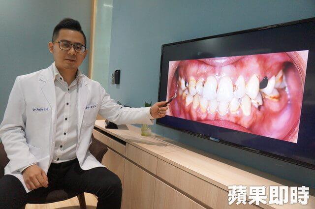 劉得廷醫師-台中全瓷冠推薦-媒體報導-醫師講解陶瓷貼片療程