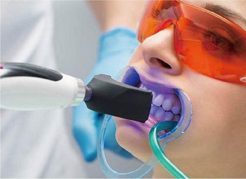 牙齒美白方法-價格-優缺點-冷光美白是在牙齒表面塗上美白藥劑-再使用低溫冷光進行氧化還原作用來清除沉積色素