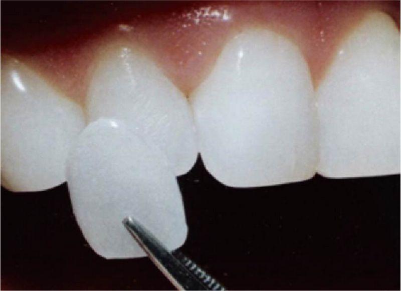 牙齒美白方法-價格-優缺點-瓷牙貼片是一種以陶瓷為材質的牙齒美白貼片