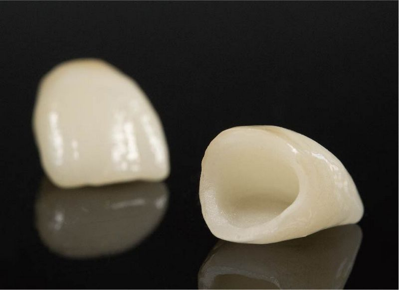 牙齒美白方法-價格-優缺點-全瓷冠就是以陶瓷材質製作的牙冠-就像是牙齒的安全帽