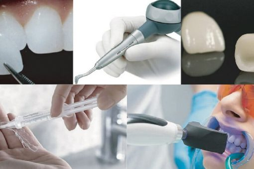 牙齒美白方法懶人包-價格與優缺點分析-牙齒美白推薦必看