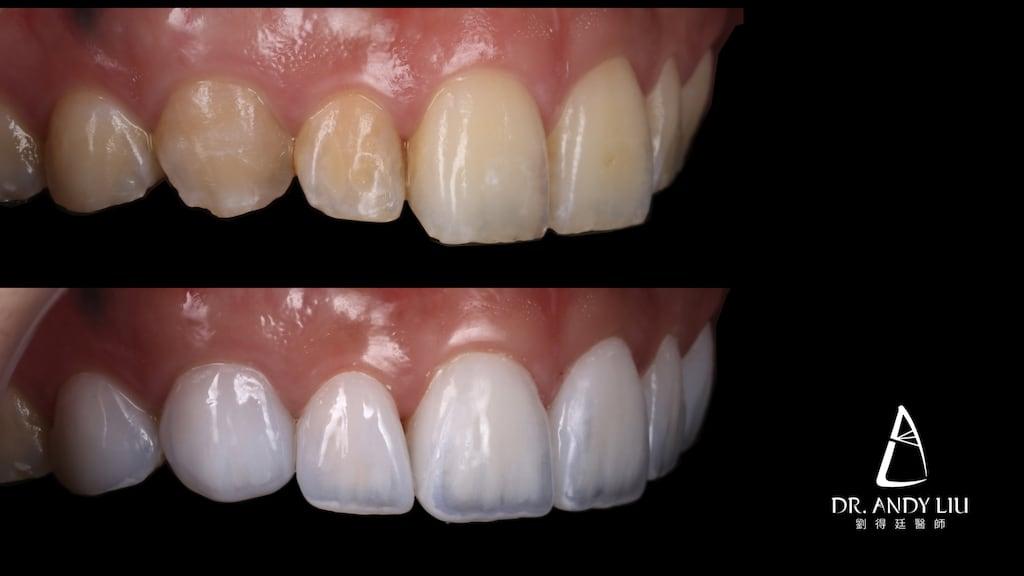 牙齒黃缺角用DSD數位微笑設計與陶瓷貼片-上排牙齒右側面