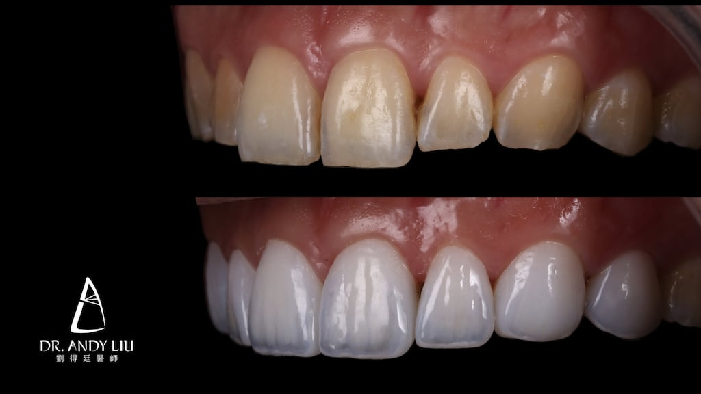牙齒黃缺角用DSD數位微笑設計與陶瓷貼片-上排牙齒左側面