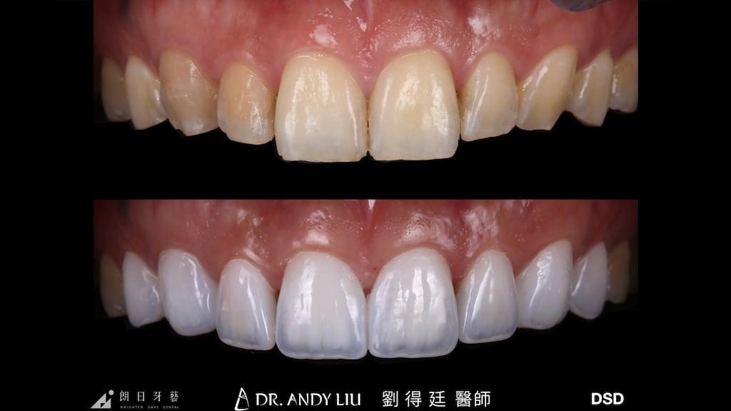 牙齒黃缺角用DSD數位微笑設計與陶瓷貼片-上排牙齒正面比較