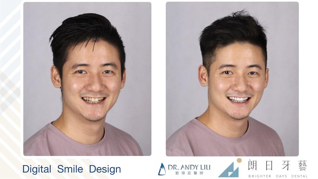 牙齒黃缺角用DSD數位微笑設計與陶瓷貼片-微右側笑容比較圖