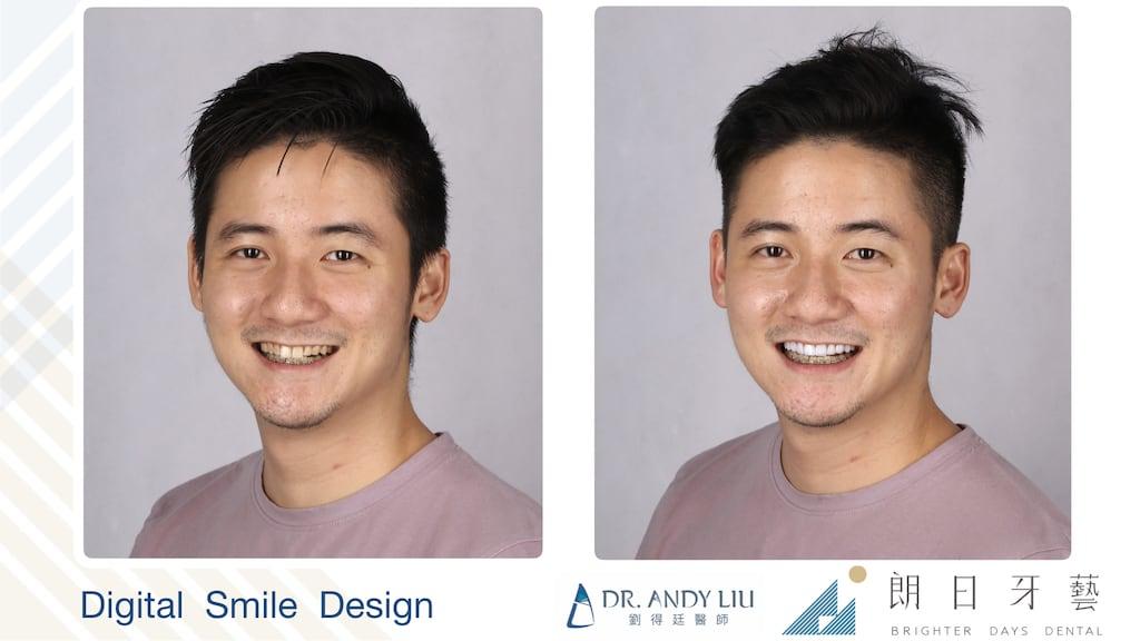 牙齒黃缺角用DSD數位微笑設計與陶瓷貼片-微左側笑容比較圖