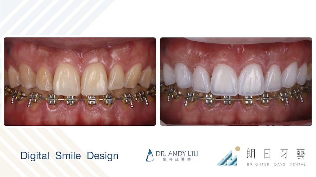 牙齒黃缺角用DSD數位微笑設計與陶瓷貼片-牙齒正面前後比較