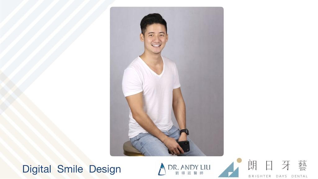 牙齒黃缺角用DSD數位微笑設計與陶瓷貼片-術後正面微笑圖