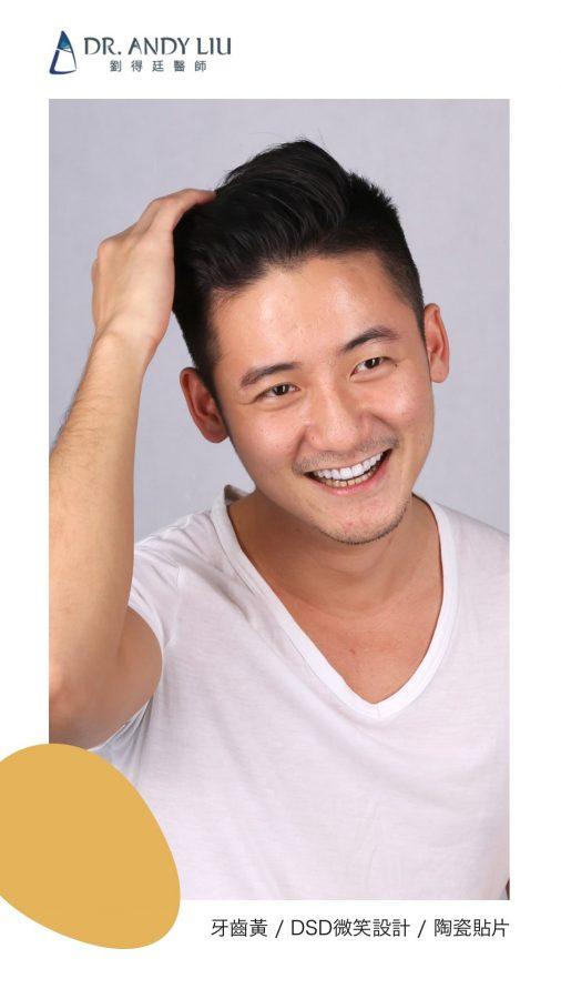 DSD微笑設計讓機師秒變型男!!牙齒黃與門牙缺角,瓷牙貼片一日美齒