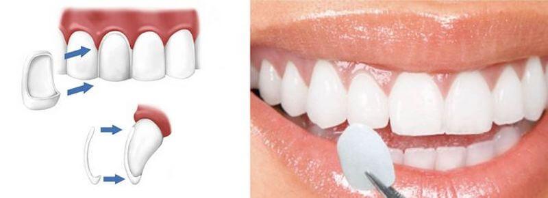 瓷牙貼片是一層覆蓋在牙齒表面的超薄瓷片-用於改善牙齒外觀與顏色