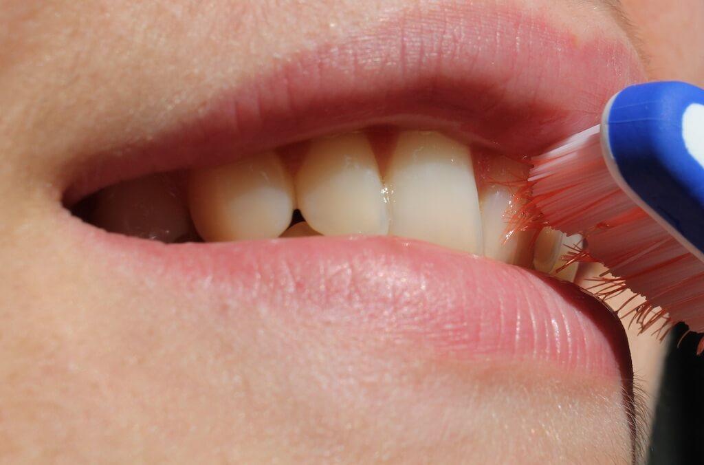 瓷牙貼片療程後如何照顧-示意圖