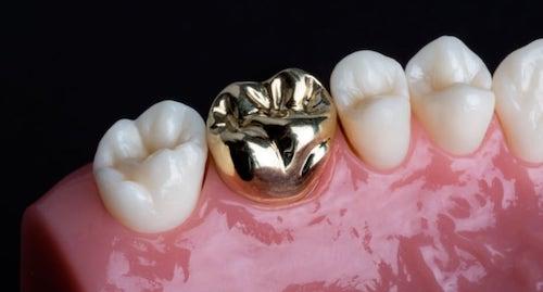 抽神經-根管治療-牙齒變黑美白推薦全瓷冠-傳統全金屬牙冠
