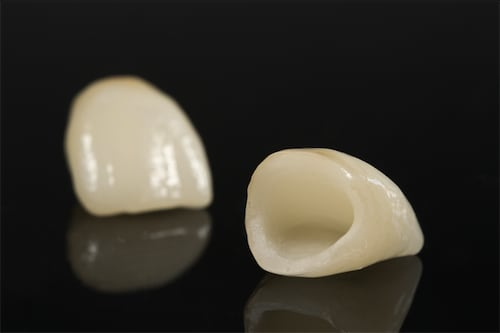 抽神經-根管治療-牙齒變黑美白推薦全瓷冠-全瓷牙冠