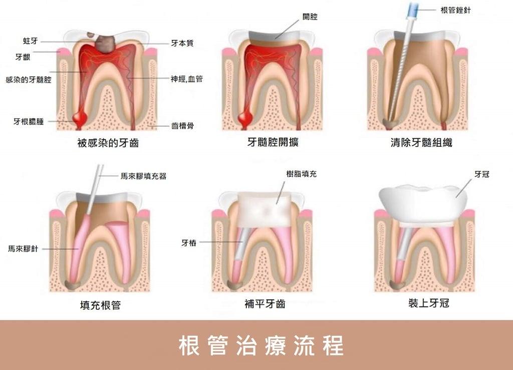 抽神經-根管治療流程圖-根管治療牙套