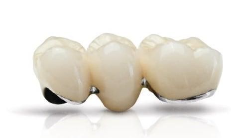 抽神經-根管治療-牙齒變黑美白推薦全瓷冠-瓷熔合金屬牙冠