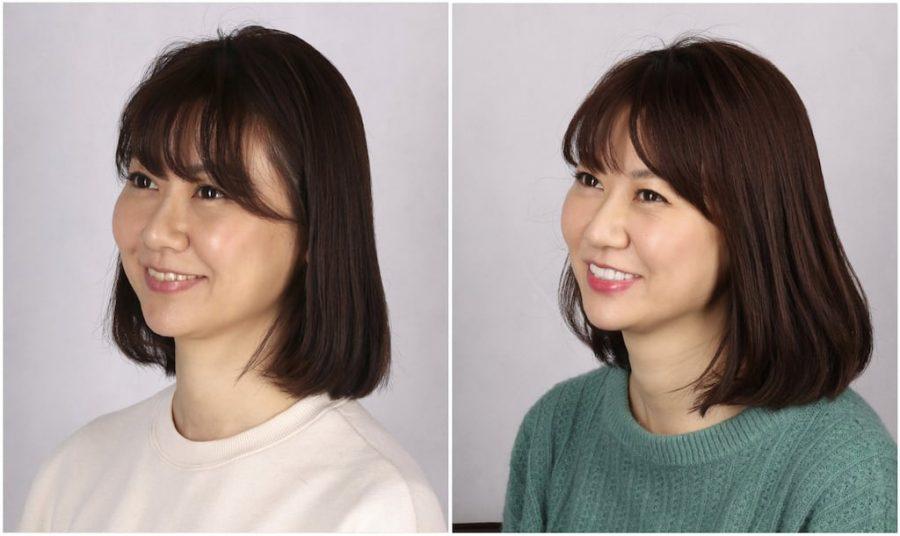 比牙齒矯正更快更美的瓷牙貼片牙齒整型心得推薦-術前術後側面照