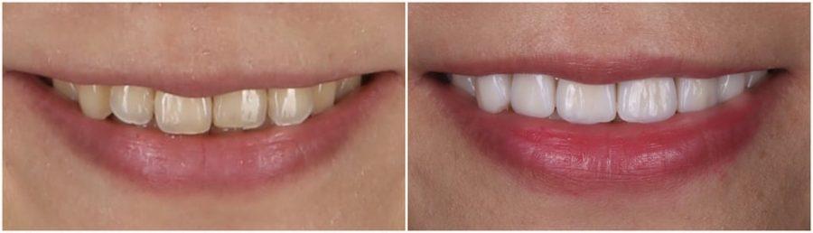 比牙齒矯正更快更美的瓷牙貼片牙齒整型心得推薦-術前術後微笑曲線比較