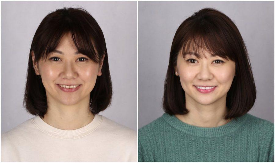 比牙齒矯正更快更美的瓷牙貼片牙齒整型心得推薦-術前術後正面照