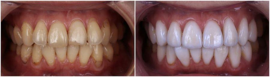 比牙齒矯正更快更美的瓷牙貼片牙齒整型心得推薦-術前術後牙齒比較