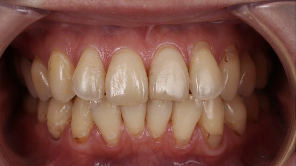 牙齒黃齒列不正免矯正-林小姐陶瓷貼片加DSD數位微笑修復推薦心得-術前有牙齒偏黃與門牙不一問題