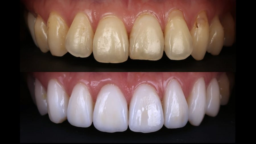 牙齒黃齒列不正免矯正-林小姐陶瓷貼片加DSD數位微笑修復推薦心得-術前術後上排牙齒正面比較