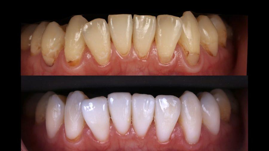 牙齒黃齒列不正免矯正-林小姐陶瓷貼片加DSD數位微笑修復推薦心得-術前術後下排牙齒正面比較