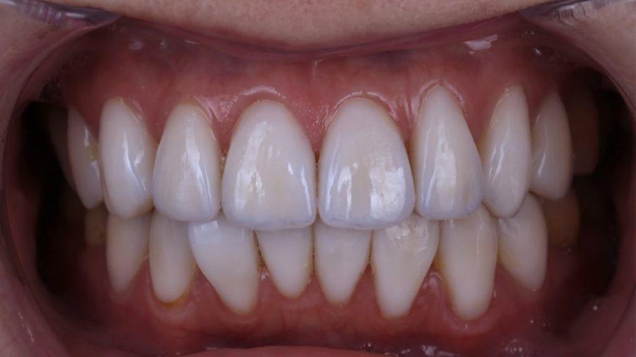 牙齒黃齒列不正免矯正-林小姐陶瓷貼片加DSD數位微笑修復推薦心得-術後門牙對稱且齒色自然