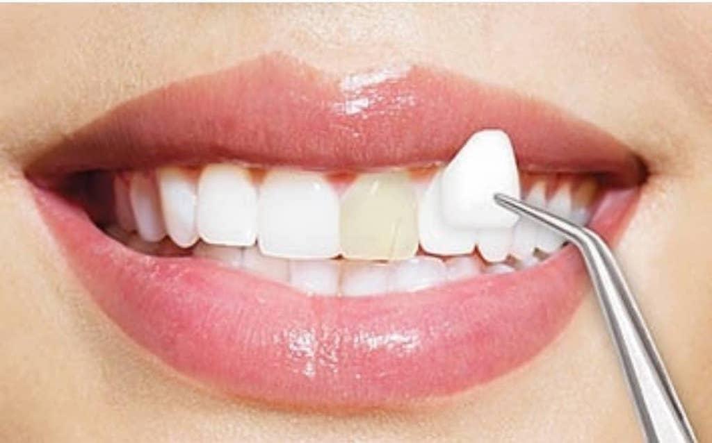 瓷牙貼片-牙齒美白-牙齒整型-瓷牙貼片壽命