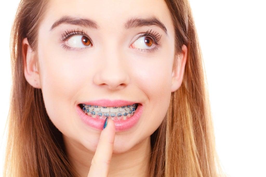 齒列不正-門牙不整齊-傳統戴蒙矯正器-瓷牙貼片-牙齒整形