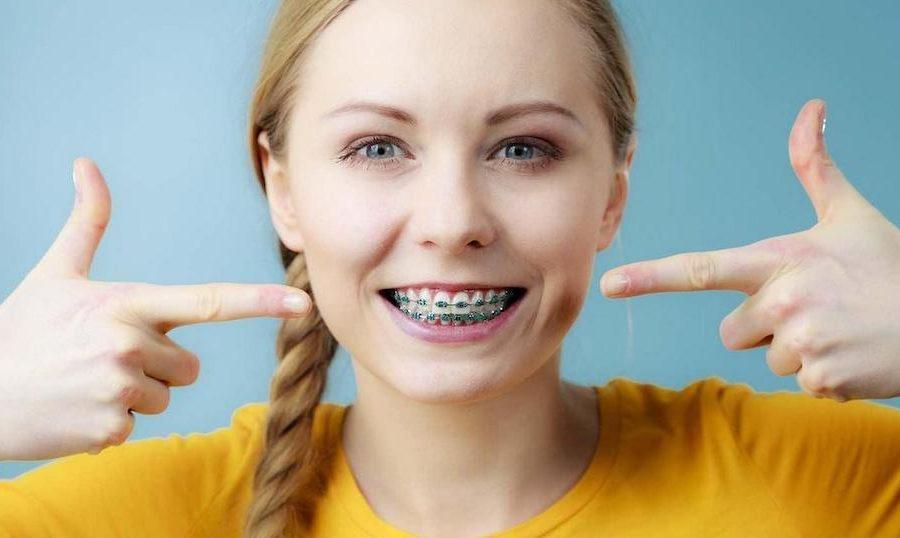 齒列不正傳統療程多用牙套-矯正器修正牙齒錯位-範例圖