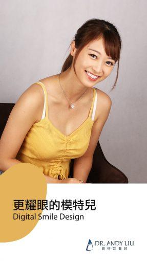 陶瓷貼片-全瓷冠-DSD微笑設計-劉得廷醫師-台中-朗日牙藝-一日美齒-模特兒林小姐