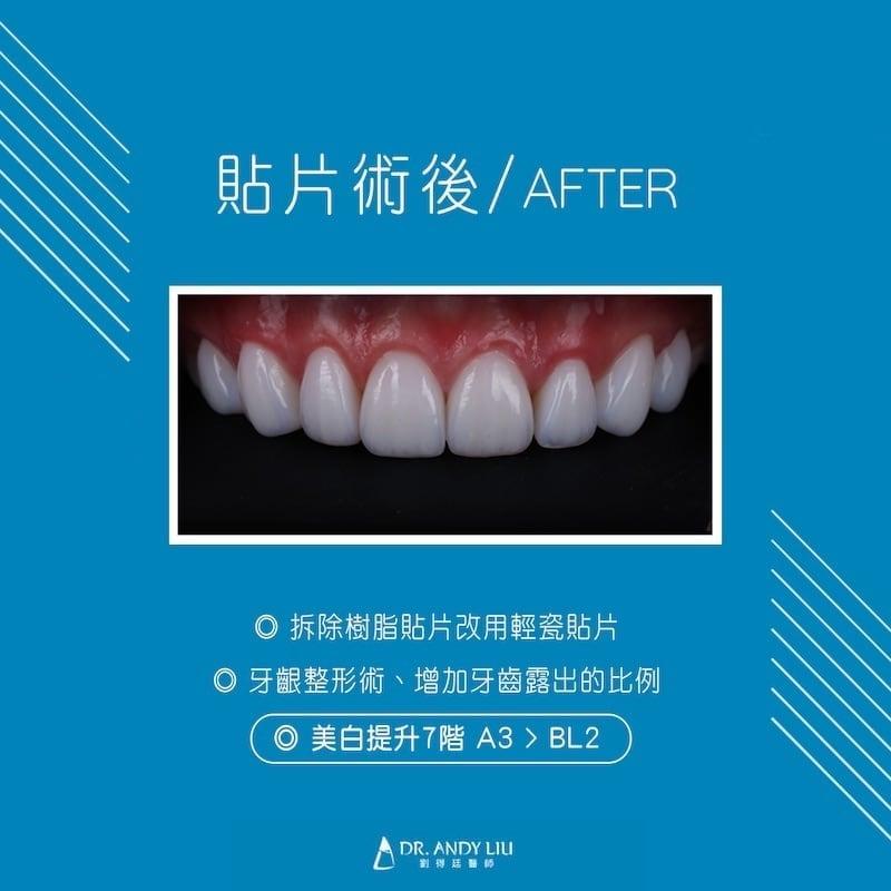 陶瓷貼片-樹脂貼片失敗-台中牙齒美白推薦-劉得廷牙醫-術後照-調整牙齒牙齦比例-牙齒亮度提升七階