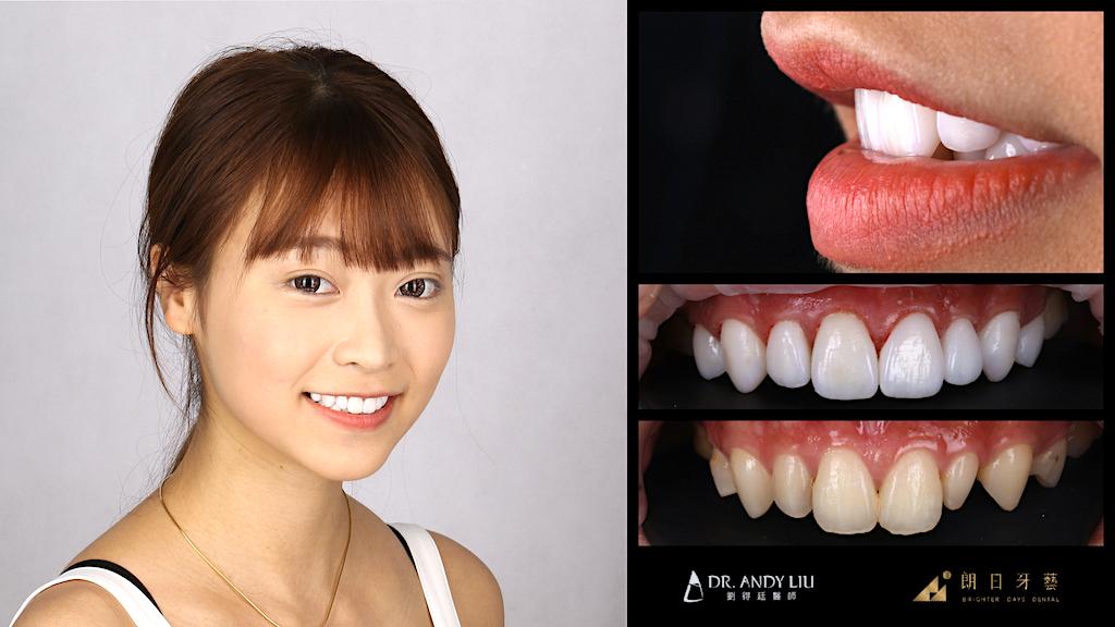 陶瓷貼片-牙齒整形調整虎牙-台中牙齒美白推薦-劉得廷醫師-台中林小姐牙齒美白心得-牙齒前後比較