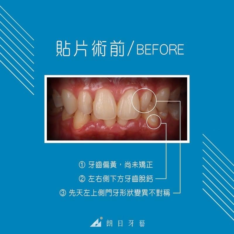 陶瓷貼片-牙齒整形調整虎牙-台中牙齒美白推薦-劉得廷醫師-台中林小姐牙齒美白心得-術前有牙齒黃-左右側脫鈣與門牙不對稱等問題