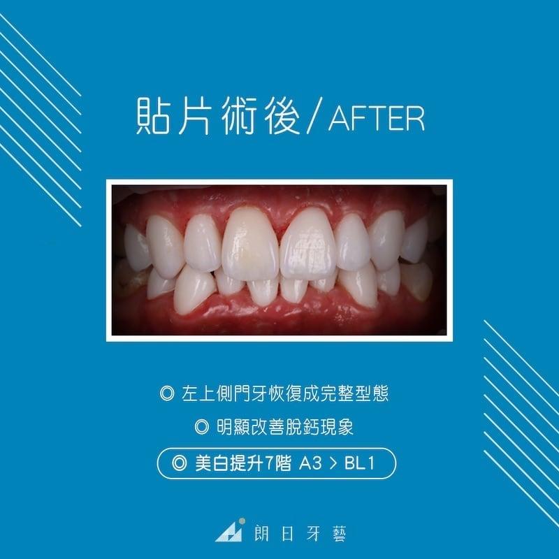 陶瓷貼片-牙齒整形調整虎牙-台中牙齒美白推薦-劉得廷醫師-台中林小姐牙齒美白心得-術後改善脫鈣現像-門牙微整形並提升亮度七階