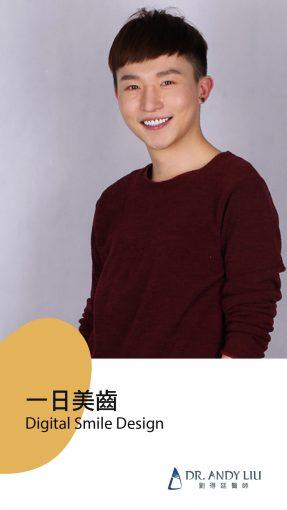 陶瓷貼片-全瓷冠-DSD微笑設計-劉得廷醫師-台中-朗日牙藝-百貨精品櫃哥