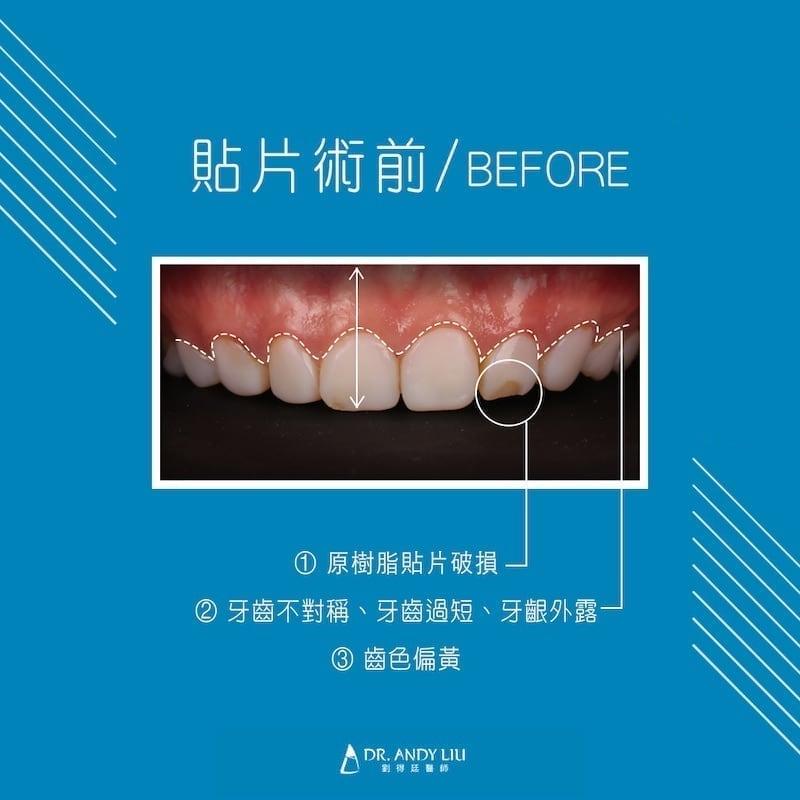 陶瓷貼片-樹脂貼片失敗-台中牙齒美白推薦-劉得廷牙醫-術前照-樹脂貼片破損-牙齒不對稱偏黃